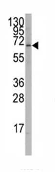 Western blot - Anti-ROR alpha antibody (ab82289)