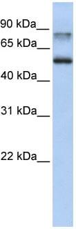 Western blot - Anti-Epsin 1 antibody (ab82688)