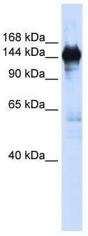 Western blot - Anti-PFAS antibody (ab82755)