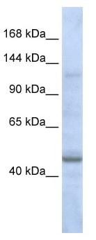 Western blot - Anti-ASTN2 antibody (ab82769)