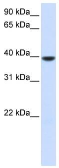 Western blot - Anti-AGPAT5 antibody (ab82783)