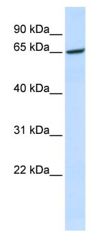 Western blot - Anti-GPR177 antibody (ab82897)