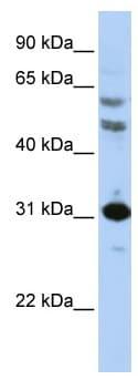 Western blot - Anti-HOXB5 antibody (ab83025)