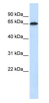 Western blot - Frizzled 4 antibody (ab83042)