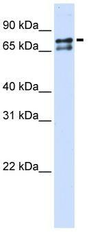 Western blot - Anti-splicing factor 1 antibody (ab83057)