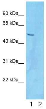 Western blot - Anti-PDLIM5 antibody (ab83060)