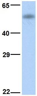 Western blot - Anti-CYP4B1 antibody (ab83224)