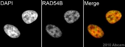 Immunocytochemistry/ Immunofluorescence - Anti-RAD54B antibody (ab83311)