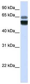 Western blot - Anti-Acid sphingomyelinase antibody (ab83354)
