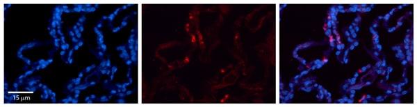 Immunohistochemistry (Formalin/PFA-fixed paraffin-embedded sections) - Anti-CRIP2 antibody (ab83489)