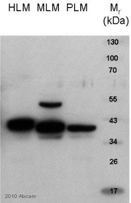 Western blot - Anti-HSD11B1 antibody (ab83522)