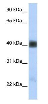 Western blot - Anti-beta Sarcoglycan antibody (ab83699)