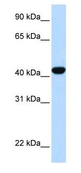 Western blot - Anti-Fumarylacetoacetate hydrolase antibody (ab83770)
