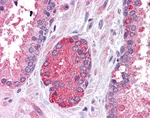 Immunohistochemistry (Formalin/PFA-fixed paraffin-embedded sections) - Anti-STAT3 antibody (ab83805)