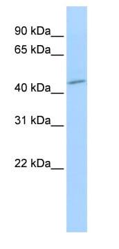 Western blot - Anti-Sphingomyelin Synthase 1 antibody (ab83856)