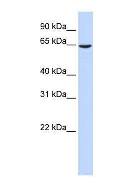 Western blot - Anti-EHD4 antibody (ab83859)