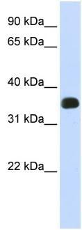 Western blot - Anti-C2ORF47 antibody (ab83884)