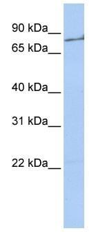 Western blot - Anti-Thrombin antibody (ab83981)