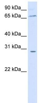 Western blot - Anti-ZBTB48 antibody (ab84023)