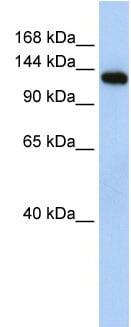 Western blot - Anti-MYBPC2 antibody (ab84048)