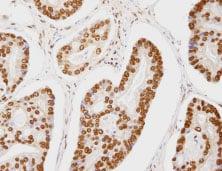 Immunohistochemistry (Formalin/PFA-fixed paraffin-embedded sections) - Anti-CA150 antibody (ab84101)