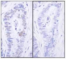 Immunohistochemistry (Formalin/PFA-fixed paraffin-embedded sections) - Anti-MCM2 (phospho S27) antibody (ab84142)