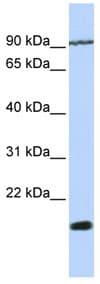 Western blot - Anti-TM4SF4 antibody (ab84300)