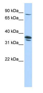Western blot - Anti-SLCO3A1 antibody (ab84315)