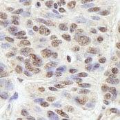 Immunohistochemistry (Formalin/PFA-fixed paraffin-embedded sections) - Anti-BLAP75 antibody (ab84387)