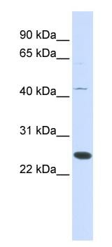Western blot - Anti-FAM119A antibody (ab84523)
