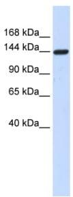 Western blot - Anti-DAAM1 antibody (ab84526)