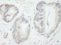 Immunohistochemistry (Formalin/PFA-fixed paraffin-embedded sections) - Anti-TFIIIC / GTF3C1 antibody (ab84534)