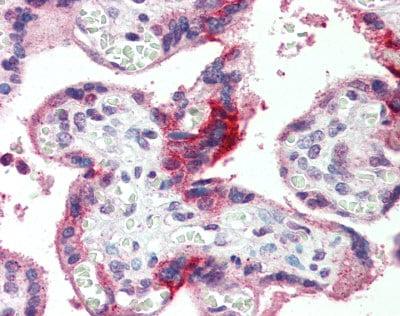 Immunohistochemistry (Formalin/PFA-fixed paraffin-embedded sections) - Anti-GPSM2 antibody (ab84571)