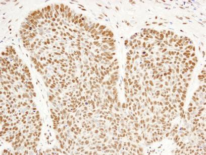 Immunohistochemistry (Formalin/PFA-fixed paraffin-embedded sections) - Anti-FIP1L1 antibody (ab84670)