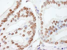 Immunohistochemistry (Formalin/PFA-fixed paraffin-embedded sections) - Anti-NUCKS1 antibody (ab84710)