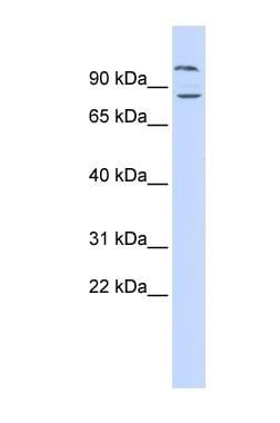 Western blot - Anti-DAGLB antibody (ab84733)