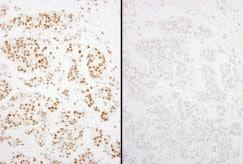 Immunohistochemistry (Formalin/PFA-fixed paraffin-embedded sections) - Anti-KMT6 / EZH2 (phospho S21) antibody (ab84989)
