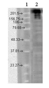 Western blot - Anti-Nav1.7 antibody [N68/6] (ab85015)