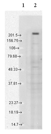 Western blot - Anti-TRPM7 antibody [N74/25] (ab85016)