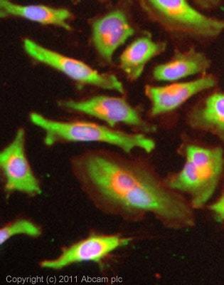 Immunocytochemistry/ Immunofluorescence - Anti-Lactate Dehydrogenase B antibody [60H11] (ab85319)