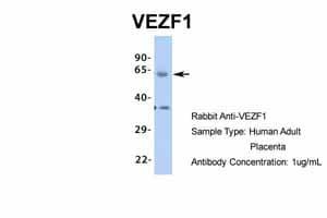 Western blot - Anti-ZNF161 antibody (ab85414)