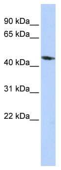 Western blot - Anti-KCNJ1 antibody (ab85479)