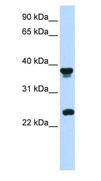 Western blot - Anti-MATH1/HATH1 antibody (ab85513)