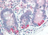 Immunohistochemistry (Formalin/PFA-fixed paraffin-embedded sections) - Anti-P4HB antibody (ab85564)