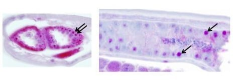 Immunohistochemistry (Formalin/PFA-fixed paraffin-embedded sections) - Anti-RHOC antibody (ab85652)