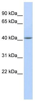 Western blot - Anti-Epithelial Stromal Interaction 1 antibody (ab85750)
