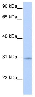 Western blot - Anti-ZNF146 antibody (ab85845)