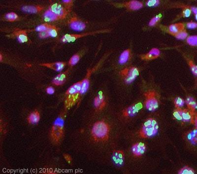 Immunocytochemistry/ Immunofluorescence - Anti-c Abl antibody (ab85947)