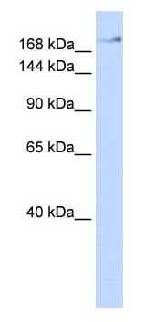 Western blot - Anti-ZNF262 antibody (ab85949)