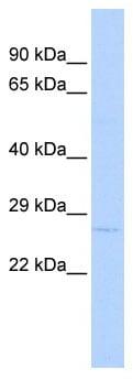 Western blot - Anti-OASL antibody (ab86124)